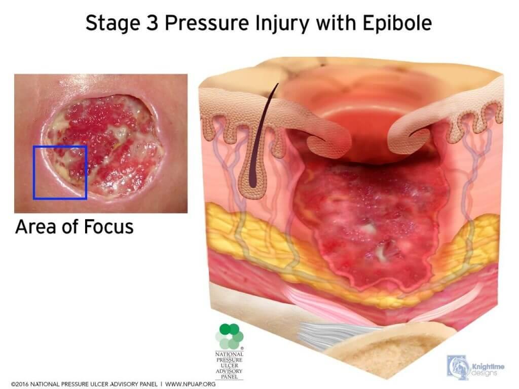 Stage 3 with Epibole