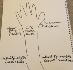 Hand special tests for the NPTE